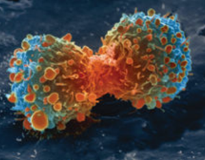 Cancer Cell Dividing - Early Signs of Cancer