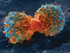 Cancer cell during division